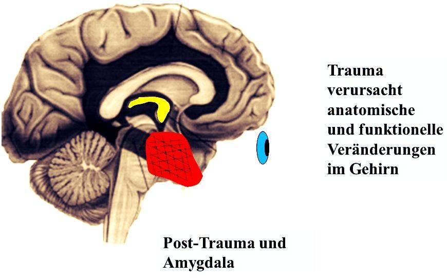 Psychotherapie für Kinder und Jugendliche in Schieder-Schwalenberg ...